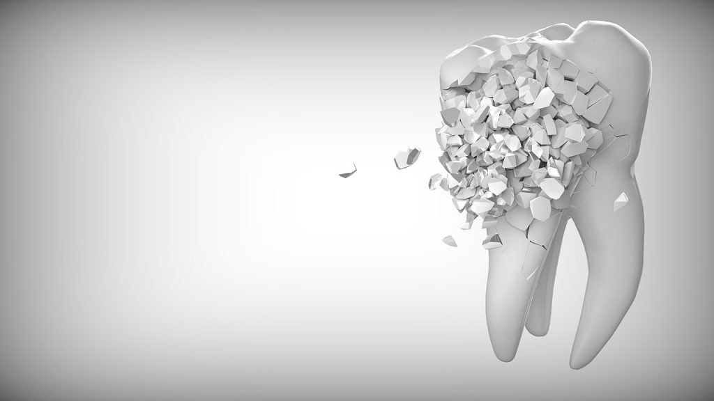 虫歯イメージ